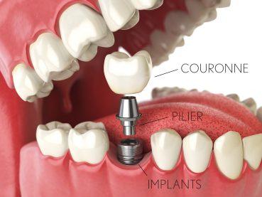 Implants dentaires : tout ce qu'il faut savoir