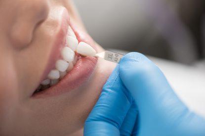 Denturologie : une expertise en prothèses dentaires